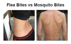Morsi di pulce contro punture di zanzara - impara la differenza