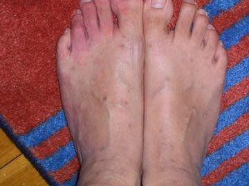 piedi delle pulci morde