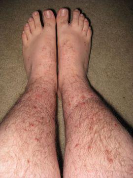 morsi delle pulci morde i piedi